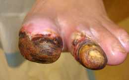 Con số giật mình: 7 giây có 1 người chết vì bệnh này, số người mắc ở Việt Nam tăng nhanh