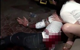 Công an Nam Định lên tiếng vụ nam thanh niên bị 2 kẻ bịt mặt chém tàn bạo