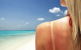 Tổn thương da do nắng và cách hồi phục hiệu quả