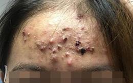 Giật mình với khuôn mặt đóng vảy sần sùi của thiếu nữ sau khi chữa mụn ở phòng khám tư