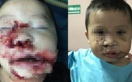 Hà Nội: Lại thêm người bị chó nhà cắn rách nát môi, lóc da bàn tay