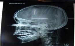 Kinh hoàng: Lưỡi cưa đâm vào mặt, nam thanh niên suýt mù mắt