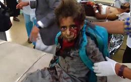 Hàng chục trẻ em Yemen chết thảm sau khi trúng tên lửa Ả Rập Xê út