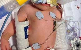 """Bác sĩ chạy đua với thời gian, cứu bé sơ sinh ngưng thở bằng """"chiếc chăn lạnh kỳ diệu"""""""