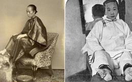 10 phương pháp chăm sóc sắc đẹp dị thường nhất trong lịch sử