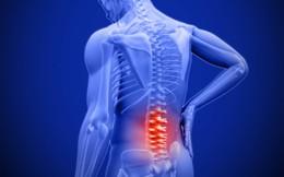 Ngồi nhiều sẽ sớm sinh bệnh đau lưng: Đây là giải pháp phòng chữa hiệu quả bạn nên áp dụng