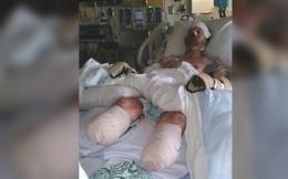 Chó nhà liếm vào vết thương, người đàn ông phải cắt cụt cả tay chân vì nhiễm trùng huyết