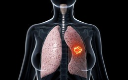 Bị ung thư phổi có thể sống được bao lâu: Bạn nên biết điều này để phòng bệnh hiệu quả