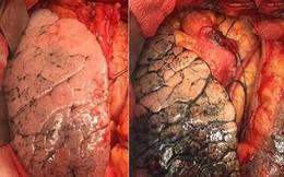 Lý do nguy hiểm khiến đa số bệnh nhân ung thư phổi đều phát hiện bệnh ở giai đoạn muộn