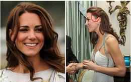 Thực hư về vết sẹo lớn trên đầu của Công nương Kate, đã được khéo léo giấu đi trong thời gian qua