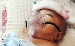Mẹ trẻ đau đớn cầu xin mạnh thường quân cứu con trai bị não úng thủy từ lúc 2 tháng tuổi