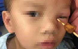 Ăn cá viên chiên, bé 4 tuổi bị que tăm xuyên vào mắt