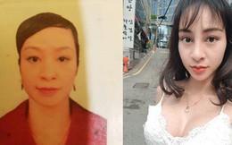 Mới phẫu thuật nâng mũi, cô gái trẻ bất ngờ bị hải quan sân bay giữ lại vì gương mặt khác xa so với ảnh hộ chiếu