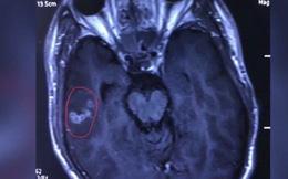 Gắp con sán còn sống dài 10cm từ não của nam thanh niên mê ăn đồ nướng