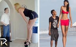Những người thân hình khổng lồ có thật trong thế giới hiện đại (P4)