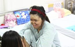 """Sau 1 năm và hàng chục cuộc phẫu thuật, người vợ Hà Nội bị chồng thiêu hôm mùng 2 Tết, chỉ có 1% cơ hội sống sót đã """"hồi sinh"""""""