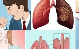Những dấu hiệu tưởng đau lưng nhưng là triệu chứng đầu tiên của ung thư phổi