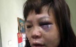 Khởi tố người chồng ở Quảng Ninh đưa vợ lên đồi đánh đập, cắt cẳng chân