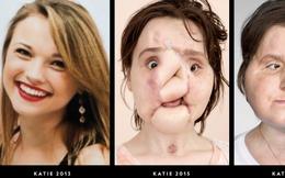 Ca phẫu thuật lịch sử dài 31 giờ trả lại gương mặt xinh đẹp cho cô gái 21 tuổi