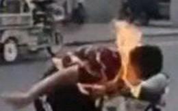 Khoe kỹ năng thổi ra lửa, cậu bé bị cháy khắp mặt