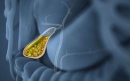 Một số loại thực phẩm có lợi và có hại cho sức khỏe túi mật bất kì ai cũng nên biết