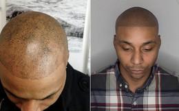 Bị hói đầu lâu năm, chàng trai quyết định xăm tóc giả trên đầu và phải hối hận về sau