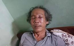 Nhà thơ gần 70 tuổi bị bảo vệ chung cư SaiGon Metro Park đánh gãy mũi