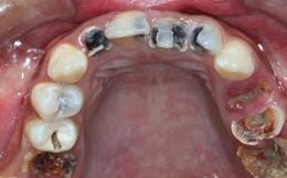 """Rất nhiều người đã bị sâu răng chỉ vì những thói quen """"sướng miệng hại răng"""""""