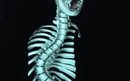 Thiếu nữ Kiên Giang mắc hội chứng hiểm, cột sống cong vẹo hình chữ S khi bắt đầu có kinh nguyệt