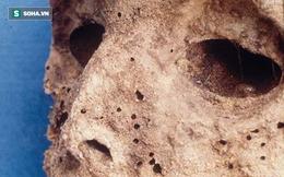 Xác ướp 450 tuổi hé lộ bí ẩn căn bệnh đáng sợ trong quá khứ