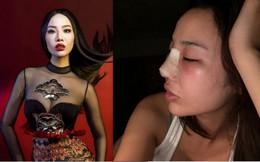 """Sau ồn ào với Kim Lý, Kiko Chan nói gì khi bị """"phanh phui"""" đã lấy chồng và phẫu thuật thẩm mỹ?"""