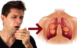 Ho trong bao lâu thì bạn nên đi khám để phòng ngừa bệnh ung thư phổi?