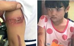 """Bé gái bị bố đẻ mẹ kế bạo hành """"biến mất"""": Chính quyền xã phải chịu trách nhiệm"""