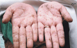 Biểu hiện của nhiễm độc thạch tín bạn cần biết