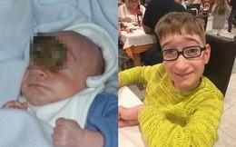 Em bé sinh ra với não bên ngoài hộp sọ, bác sĩ không quan tâm vì cho rằng chỉ sống được 1 giờ, 10 năm sau họ đã phải hối hận