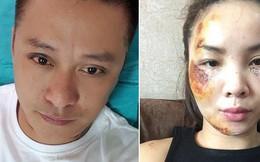 Sao Việt gặp tai nạn: Lê Minh gãy xương, Tuấn Hưng giảm thị lực nhưng chưa phải kinh khủng nhất