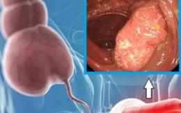 Ung thư đại tràng liệu có đáng sợ?