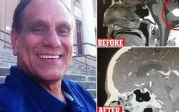 """Mỹ: Người đàn ông thấp thỏm chuẩn bị phẫu thuật u não, trước ngày lên bàn mổ, khối u """"sợ quá"""" biến mất luôn"""