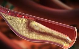 Liệu pháp đơn giản giúp giảm cholesterol