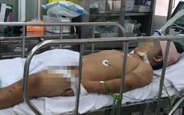Bến Tre: Đi bão sau trận Việt Nam - Malaysia, chàng trai 17 tuổi đâm xe xuống sông nguy kịch
