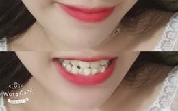Có một nỗi đau mang tên răng 9-6-3-0: Đi đâu cũng tự ti, cười không dám cười lớn