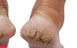 Có dấu hiệu này ở chân điều trị 1,2 tháng không hết phải nghĩ đến bệnh ung thư