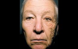 Nhìn những hình ảnh này mới thấy chính xác những thiệt hại của ánh nắng mặt trời gây ra cho làn da của bạn