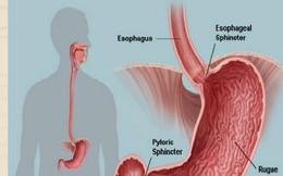 Nguyên GĐ Bệnh viện E: Đây là những người có nguy cơ mắc ung thư dạ dày cao nhất