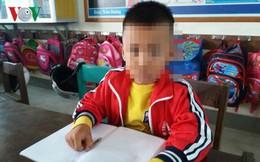 Cô giáo tát 2 cái khiến học sinh nghi bị chấn động sọ não