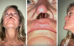 Xót xa người phụ nữ 11 năm sống với một lỗ mũi