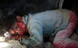 24h qua ảnh: Em bé Syria bị thương chờ được giải cứu