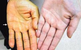 5 triệu chứng sớm của bệnh viêm gan và gợi ý phương thuốc tự nhiên giúp phục gan