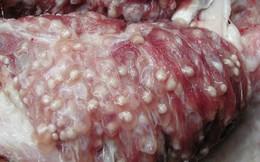"""Ăn thịt lợn gạo: Sán có chạy """"tung tăng"""" trong cơ thể và não hay không?"""