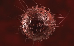 15 dấu hiệu ung thư phổ biến ở nam giới: Đọc thêm 1 lần là tăng cơ hội sống sót cao hơn